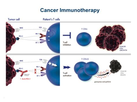 immunotherapy and radiation a new anti pd l1 grace lung cancer