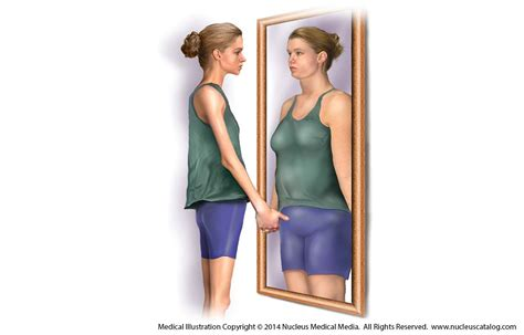 sectioned for anorexia anorexia nervosa pictures to pin on pinterest pinsdaddy