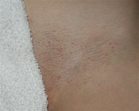 brazilian hair removal pics the day after deseret skin s blog