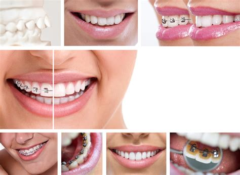 How Much Do Braces Cost and Are They Worth the Investment?