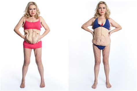 how to tighten loose skin after c section tina malone to have skin removed for tlc documentary