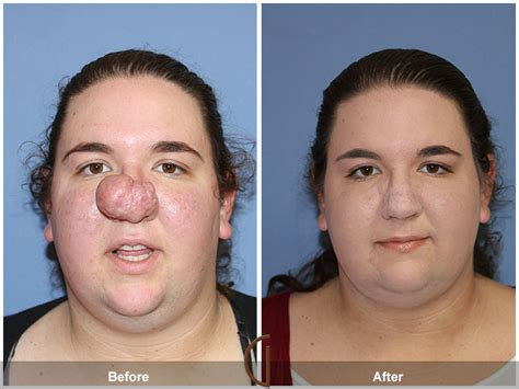 photo gallery before and after cosmetic surgeon in the newport beach facial plastic surgeon has given a woman s