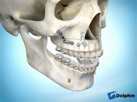 try jaw day 22 don t try this at home double jaw surgery