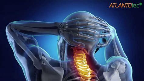 sensazione di bruciore alla testa correzione dell atlante contro mal di testa emicrania