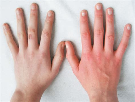red hands a white hand and a red hand erythromelalgia nejm