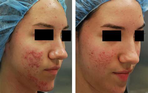 light scar treatment light brown acne scars decoratingspecial com