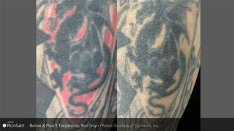 laser tattoo removal charlotte nc laser removal before and after carolina