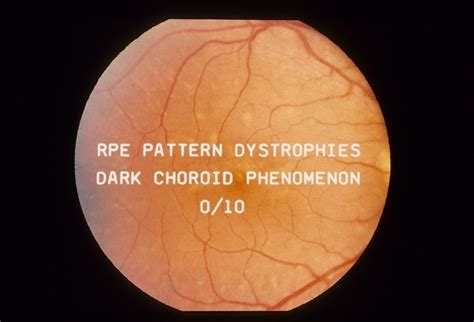 pattern dystrophy of the retinal pigment epithelium rpe pattern dystrophy retina image bank