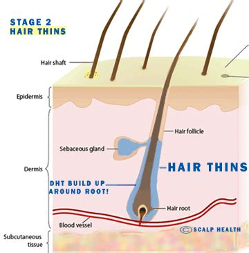 dht and hair loss 5ar inhibitor seehow anti dht hair loss treatment malaysia how to combat dht