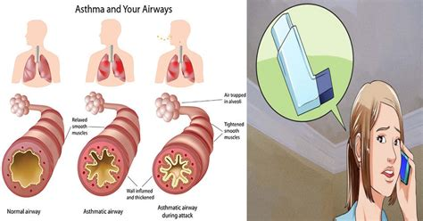 asthma attack 7 ways to survive an asthma attack if you re without an inhaler