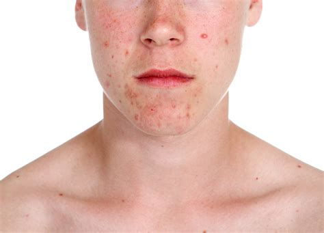What Is Acne by Pictures Info Acne Vulgaris