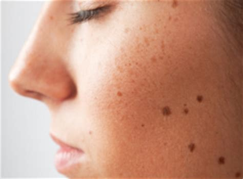light brown spots on skin brown spots on skin causes raised patches
