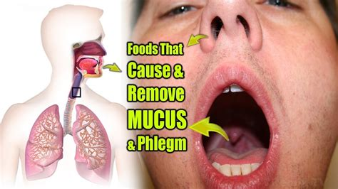 what color is blood inside your foods that cause and remove mucus phlegm from inside of