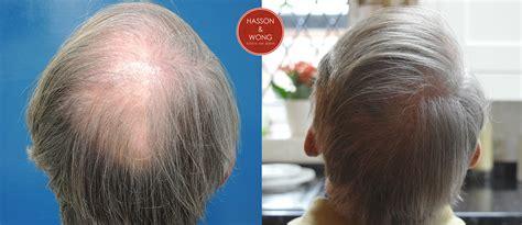 fut hong kong hair transplant dr wong 4442 grafts fut 2 sessions 10 months post op