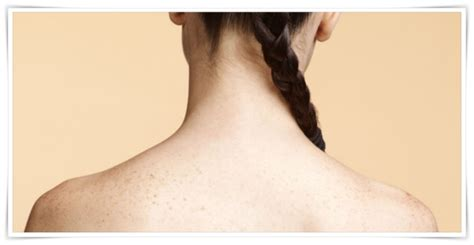 penyebab   menghilangkan jerawat  punggung