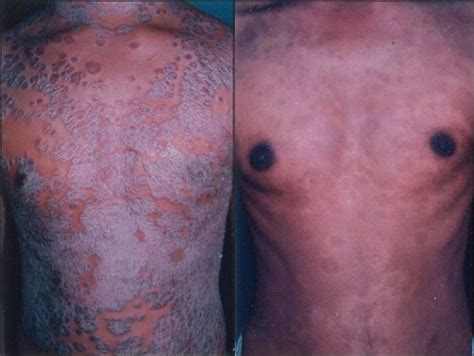psoriasis and ultraviolet light phototherapy for psoriasis ultraviolet