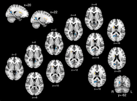 auditory verbal hallucinations  schizophrenia smbhc