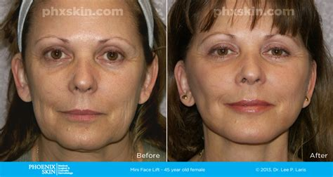 Is A Mini Lift A Facelift Alternative by The Miracle Mini Facelift In Scottsdale Az