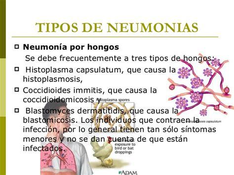 cadena epidemiologica psitacosis neumonia