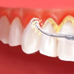 periodontal treatment mohr smiles dentistry
