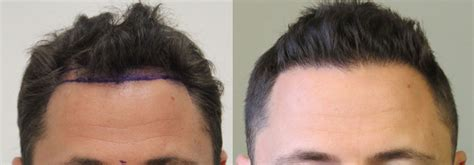 best hairtransplant in the world toronto hair transplant patient aaron shares his rahal story