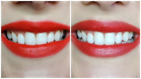 crest whitestrips supreme review update crest 3d white whitestrips luxe supreme flexfit