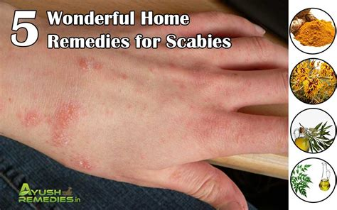 5 home remedies for scabies treatment to get rid of scabies