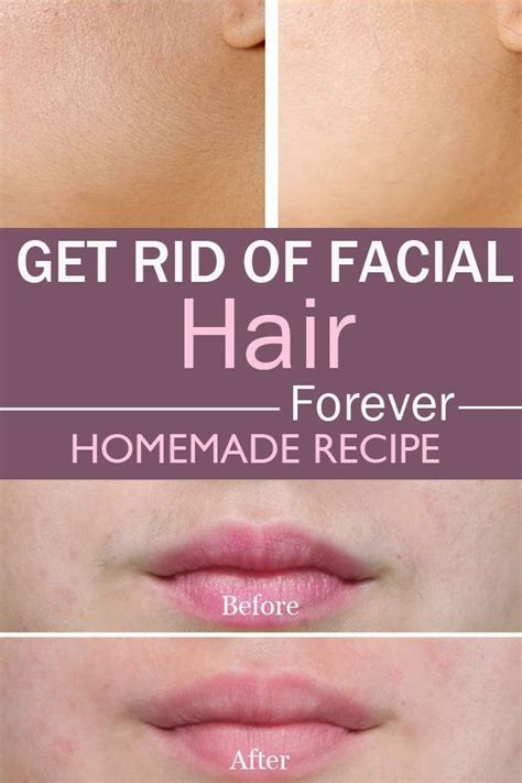how to get rid of a deep ingrown hair ingrown hair eyebrow removal hairsstyles co