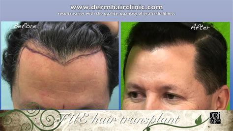 how to hide widow peaks fue transplant improves widows peak hairline shape