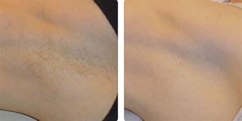 tattoo removal oxford laser hair removal oxford henley