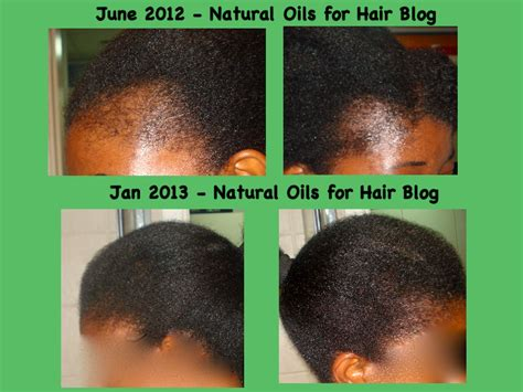 jamaican castrol oil 6 month results regrow bald spots with jamaican black castor oil hair