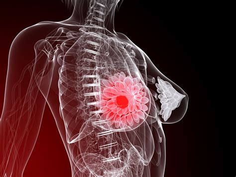 mammary cancer expectancy drugs with directed molecules increase expectancy by five years in breast cancer