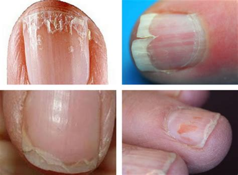 brittle nails point to thyroid problem the peoples pharmacy an overall view of your health seen through nail problems