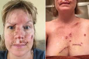 tanning bed skin cancer judy cloud s facebook skin cancer selfies warn people off