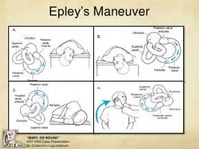 home epley maneuver benign paroxysmal positional vertigo
