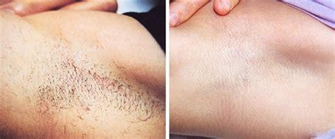 Lotus Beverly Hills Skin Center Laser Hair Removal | los angeles laser hair removal laser hair removal beverly