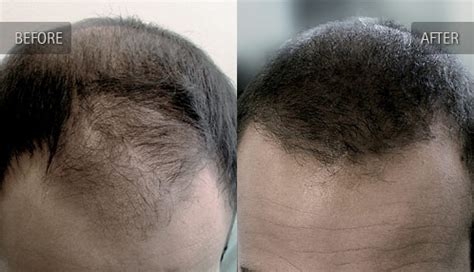 hair restoration hair transplant neograft orlando orlando hair transplant before and after photos of hair