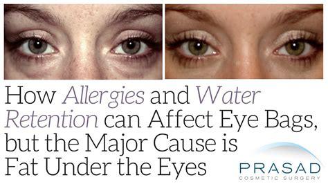 eye bags caused by allergies best model bag 2016