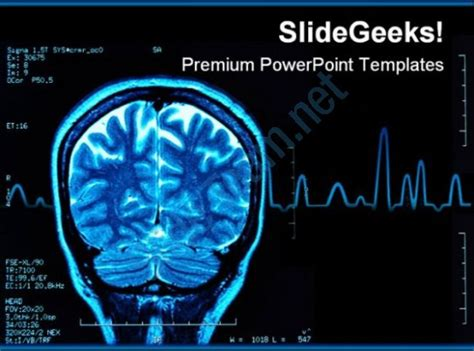 Free Brain Powerpoint Templates by Brain Mri Powerpoint Template 0610 Presentation