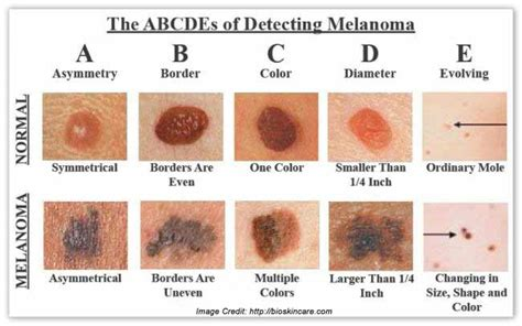 what color is melanoma melanoma get a comprehensive details about its prevention