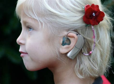 hairstyles to hide cochlear implants the ci circle news decorating ci processors