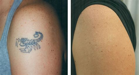 tattoo removal success pictures removal before after with the naturalase qs laser