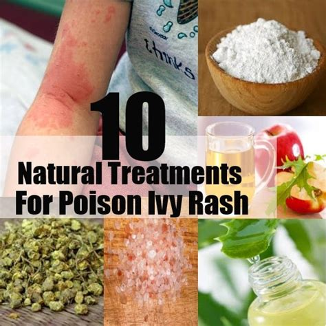 10 amazing treatments for poison rash diy