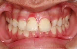 gingivitis treatment if you need dental services look no further white cedar dental care in barrie