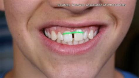 How To Make Braces With Paper - on your side orthodontists call diy braces a dangerous