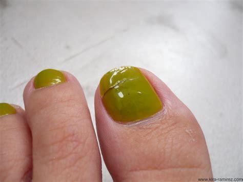 split toenail split toenail