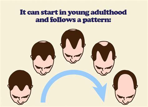male pubic hair growth pattern dark brown hairs male pattern baldness genetics pattern hair loss blame