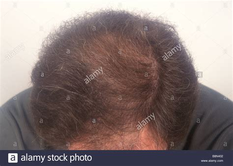 hairstyles to cover thinning hair on scalp really thin hair on top of head trendy hairstyles in the usa