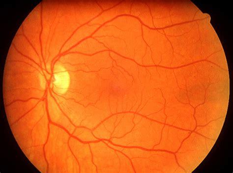 fundus eye photo isoptik optometric practice 5