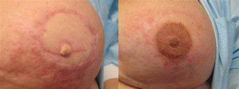 Nipple Tattoo After Reconstruction Pictures | top double mastectomy scars images for pinterest tattoos